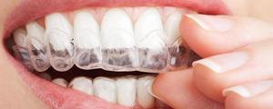 Izbeljivanje zuba naslovna