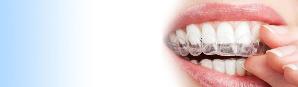 izbeljivanje zuba cena