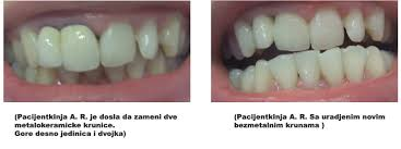 bezmetalne krune krunice stomatolog beograd