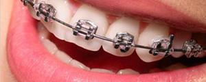 ortodoncijanaslovna