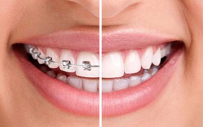 ortodoncija lecenje
