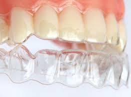 Ritejner Ortodoncija