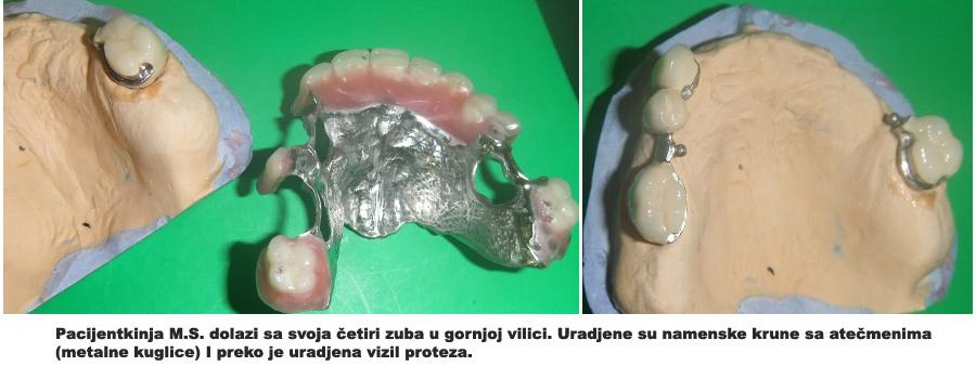 protetika vizil-zubi