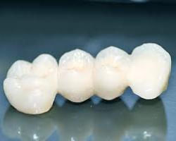 zubni-mostovi