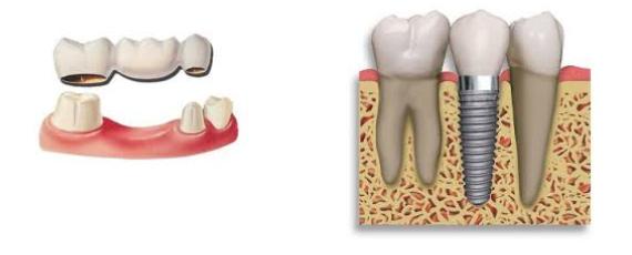 most na implantima
