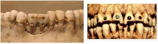 Prvi zubi