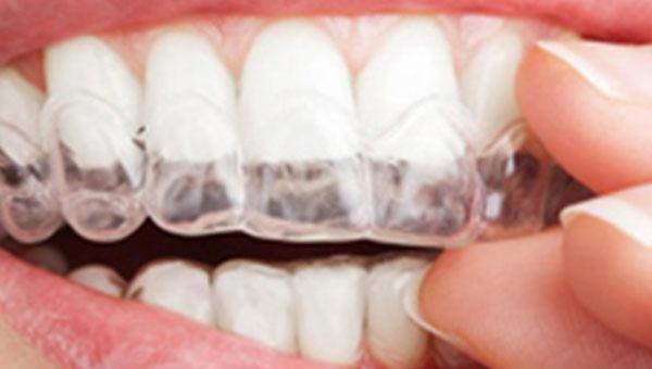 Izbeljivanje zuba Stomatolog Beograd