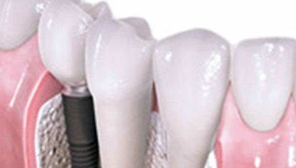 Implanti zuba Stomatolog Beograd