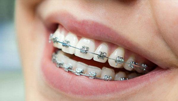 Ortodoncija fiksne proteze Stomatolog Beograd