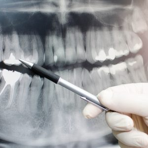 vadjenje zuba